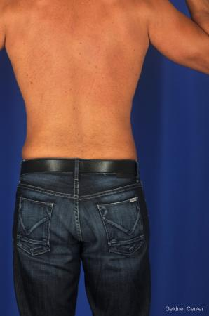 Liposuction For Men: Patient 1 - After Image 4