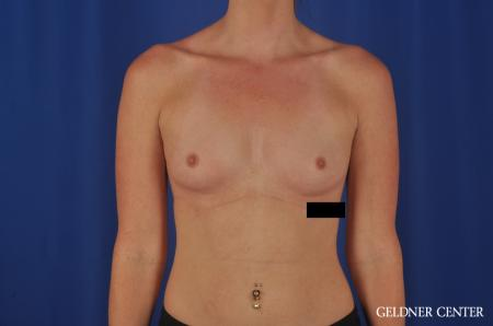 Breast Augmentation Lake Shore Dr, Chicago 6658 - Before Image 1