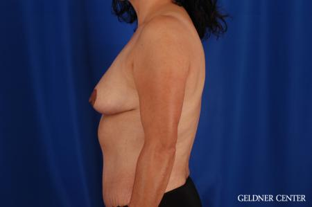 Breast Reduction Hinsdale, Chicago 2630 -  After 4