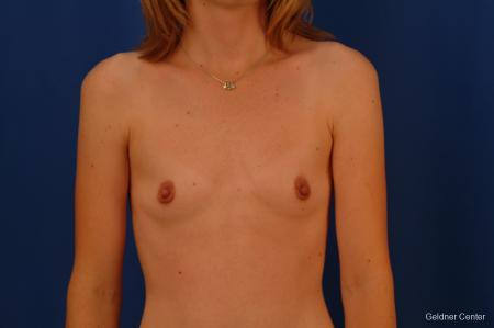 Breast Augmentation Streeterville, Chicago 2530 - Before Image 1