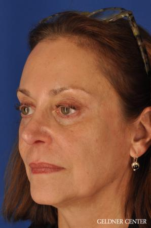 Facelift & Neck Lift: Patient 1 - Before and After Image 4
