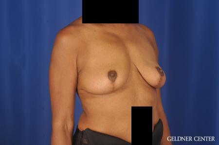 Breast Lift: Patient 22 - After Image 3