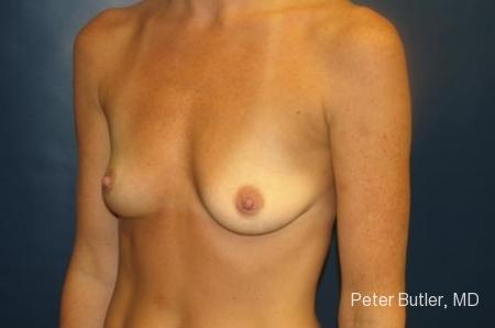 Pensacola Silicone Breast Augmentation Expert Dr. Peter Butler - Before Image 3