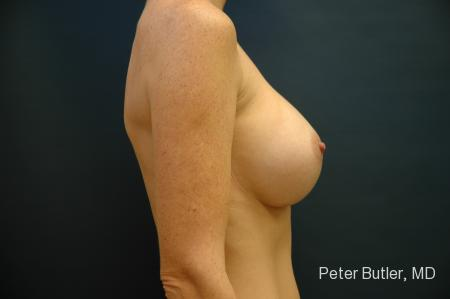 Pensacola Silicone Breast Augmentation Expert Dr. Peter Butler -  After Image 4