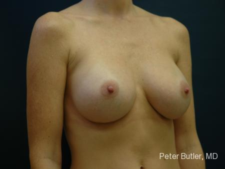 Pensacola Silicone Breast Augmentation Expert Dr. Peter Butler -  After Image 2