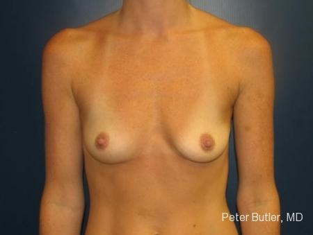 Pensacola Silicone Breast Augmentation Expert Dr. Peter Butler - Before Image 1