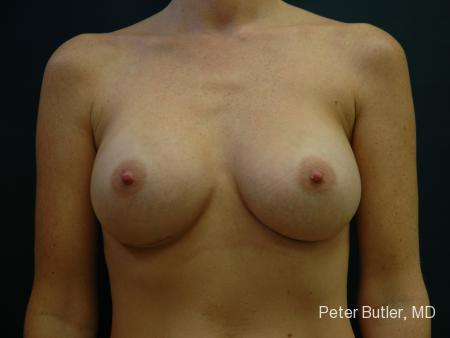 Pensacola Silicone Breast Augmentation Expert Dr. Peter Butler -  After Image 1