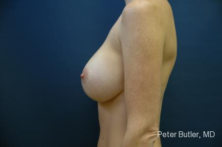 Pensacola Silicone Breast Augmentation Expert Dr. Peter Butler -  After Image 5