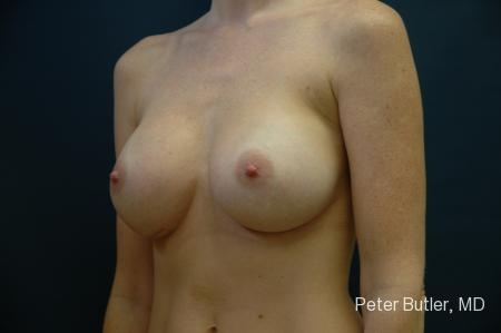 Pensacola Silicone Breast Augmentation Expert Dr. Peter Butler -  After Image 3