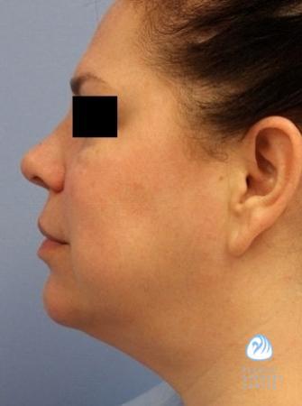 Facial smart lipo
