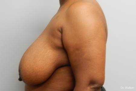 Breast Reduction: Patient 7 - Before Image
