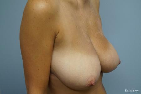 Breast Reduction: Patient 3 - Before Image 2