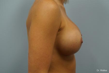 Breast Augmentation: Patient 3 - After 4