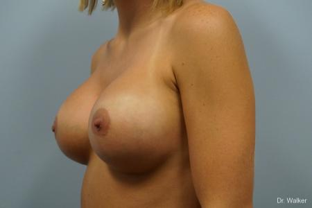 Breast Augmentation: Patient 3 - After 3