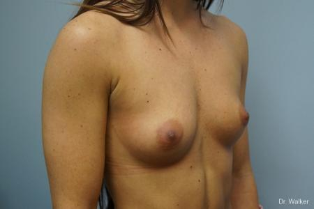 Breast Augmentation: Patient 1 - Before Image 2