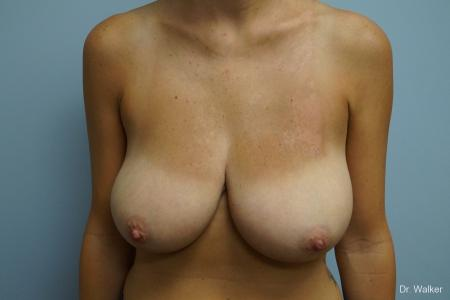 Breast Reduction: Patient 3 - Before Image 1