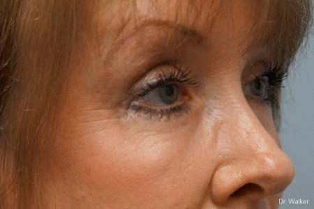 Blepharoplasty: Patient 1 - After Image 2