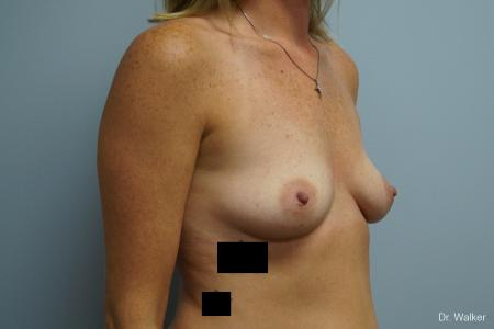 Breast Augmentation: Patient 7 - Before Image 3