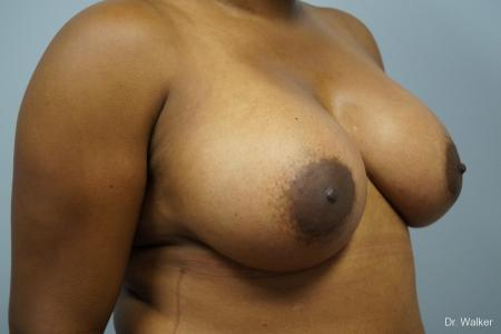 Breast Augmentation: Patient 8 - After Image 4