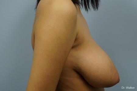 Breast Reduction: Patient 1 - Before Image 3