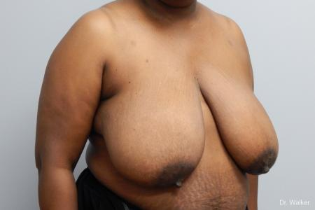 Breast Reduction: Patient 7 - Before and After Image 4