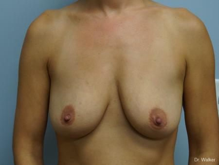 Breast Augmentation: Patient 6 - Before 1