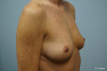 Breast Augmentation: Patient 4 - Before Image 2