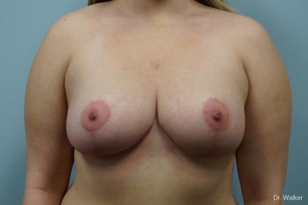 Breast Lift: Patient 2 - After Image
