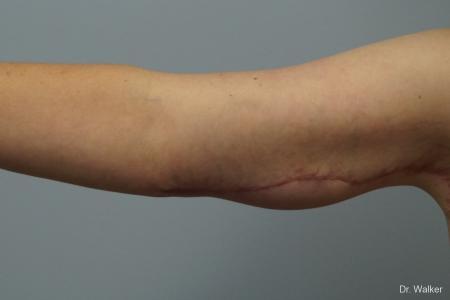 Brachioplasty: Patient 1 - After Image 2