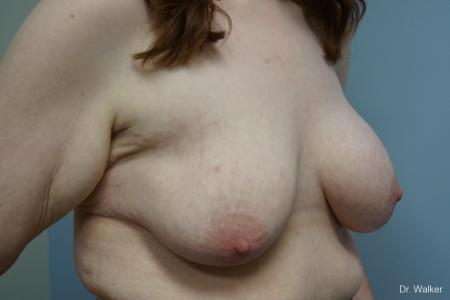 Breast Lift And Augmentation: Patient 1 - Before and After Image 5