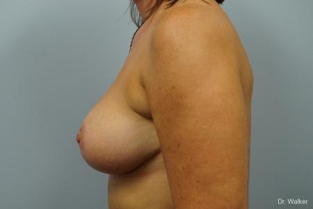 Breast Lift: Patient 1 - After Image 5