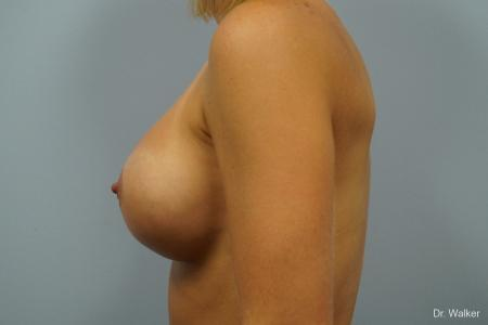 Breast Augmentation: Patient 3 - After Image 5