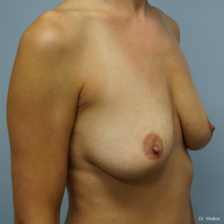 Breast Augmentation: Patient 6 - Before 3