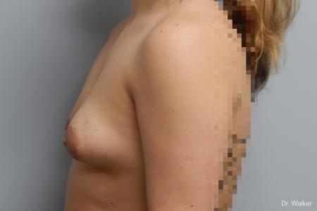 Breast Asymmetry: Patient 1 - Before and After Image 3