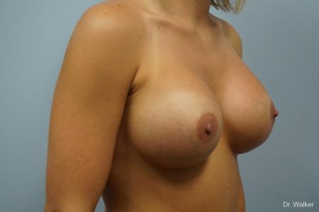 Breast Augmentation: Patient 3 - After 2