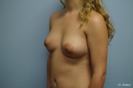 Breast Asymmetry: Patient 1 - After Image 2