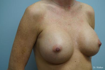 Breast Augmentation: Patient 4 - After 2