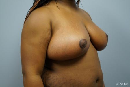 Breast Reduction: Patient 6 - After Image 5