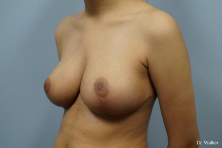 Breast Reduction: Patient 1 - After Image 4