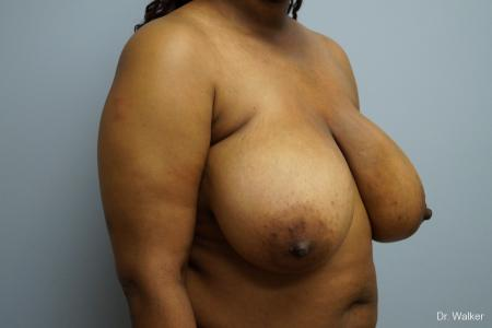 Breast Reduction: Patient 4 - Before Image 2
