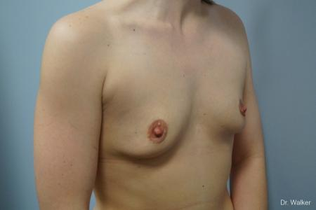 Breast Augmentation: Patient 3 - Before 2