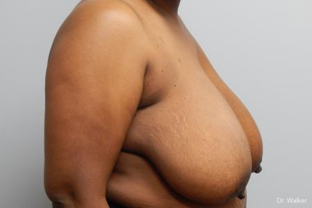 Breast Reduction: Patient 7 - Before Image 3