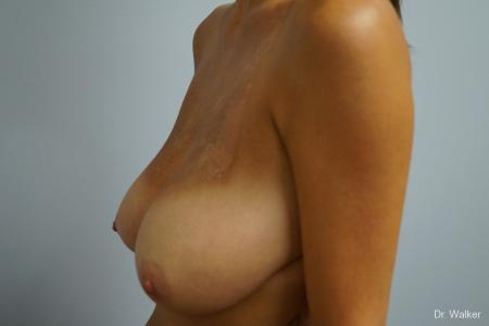 Breast Reduction: Patient 3 - Before and After Image 3