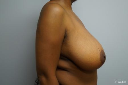Breast Reduction: Patient 2 - Before and After Image 5