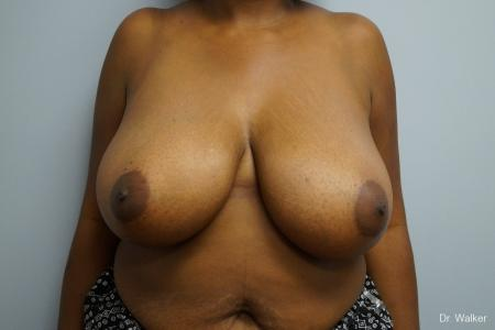 Breast Reduction: Patient 2 - Before Image 1