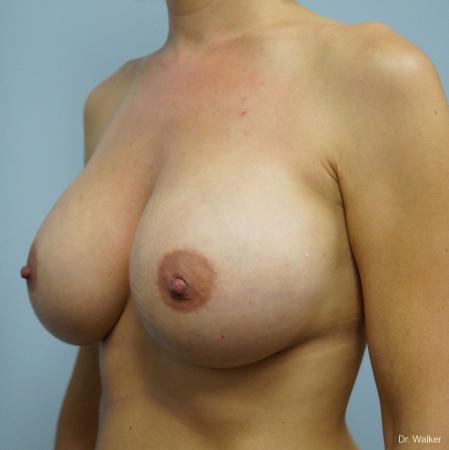 Breast Augmentation: Patient 6 - After 2