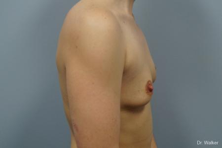 Breast Augmentation: Patient 3 - Before 4