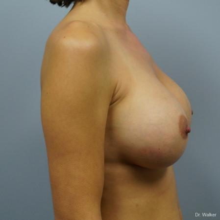 Breast Augmentation: Patient 6 - After 5