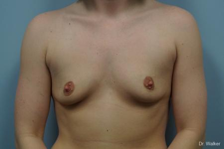 Breast Augmentation: Patient 3 - Before 1