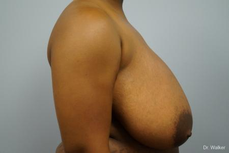 Breast Reduction: Patient 6 - Before Image 3